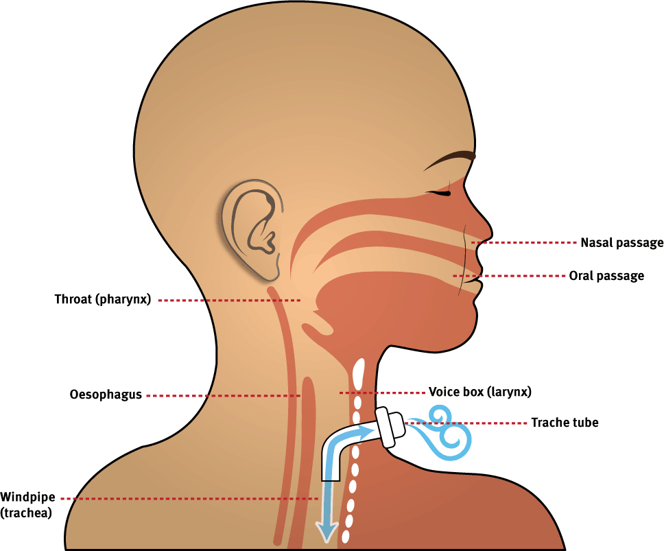tracheostomy-tubes